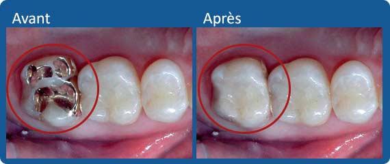 Avant et après une couronne