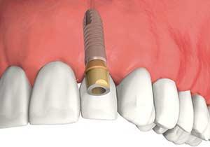 Couronne sur implant