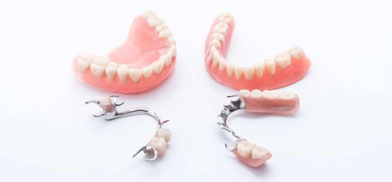 Prothèses dentaires (dentiers)
