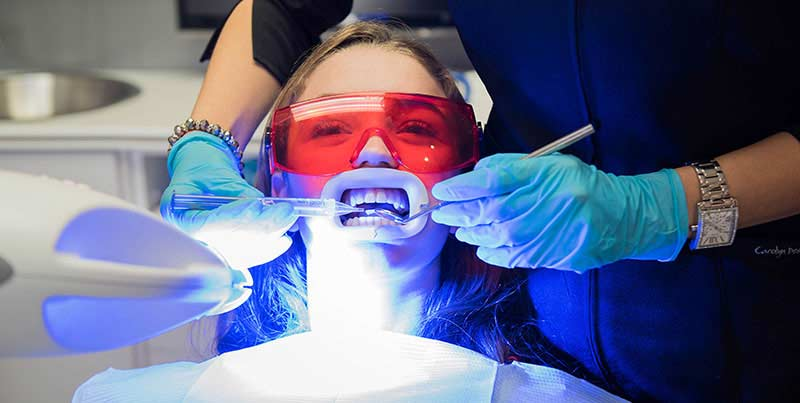 Teeth whitening at the clinic has numerous advantages